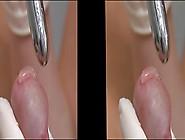 Finger Im Penis 3D